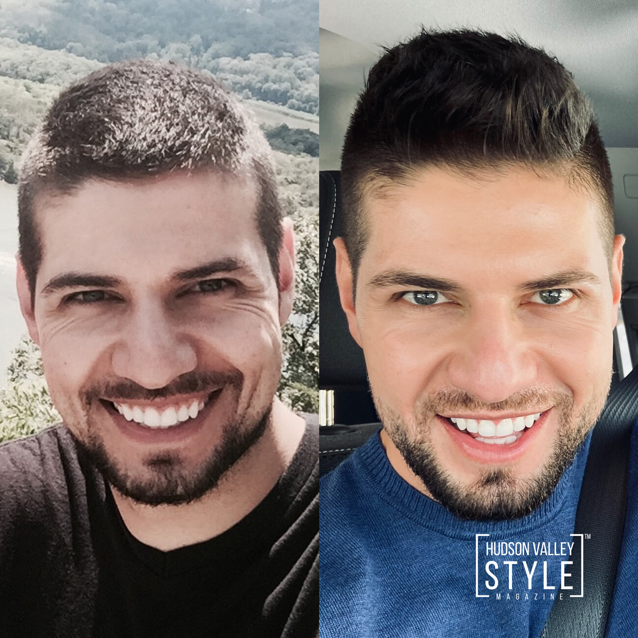 Before and after: 29 y/o vs. 34 y/o – How I overcame the stigma, fear, and judgment around Botox, or better know around men as Brotox, and other facial injectables – Men's Beauty with Dino Alexander